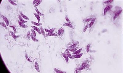 400px-toxoplasmosis2