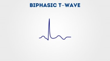 biphasic t wave