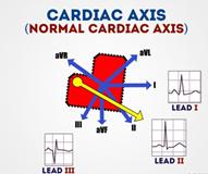 cardiac axis