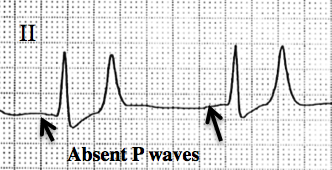 ECG_demonstrating_hyperkalemia_with_absent_P_waves