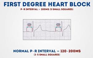 First degree heart block