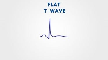 flat t wave