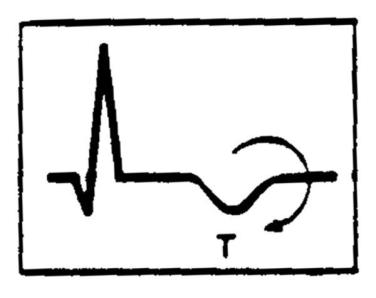 inverted t wave