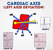 left axis deviation